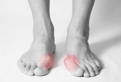 Zdjęcie stopy z palcami młotkowatymi
