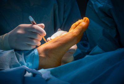 chirurg stopy warszawa medicum