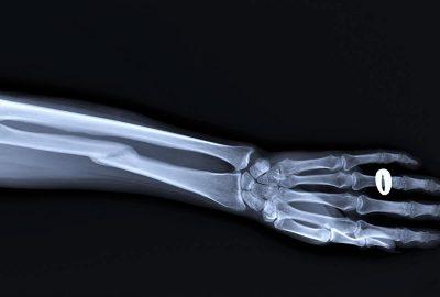 operacje zlamania dalszej nasady kosci promieniowej