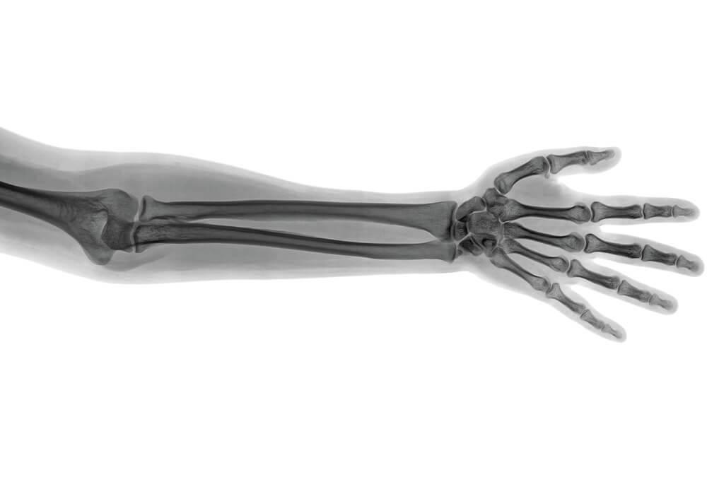 chirurgiczne leczenie zlamania kosci promieniowej