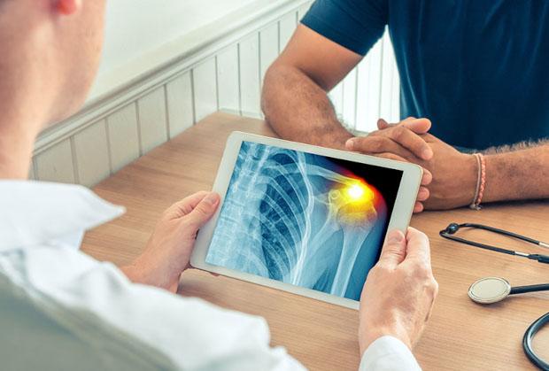 diagnostyka niestabilnosci stawu ramiennego