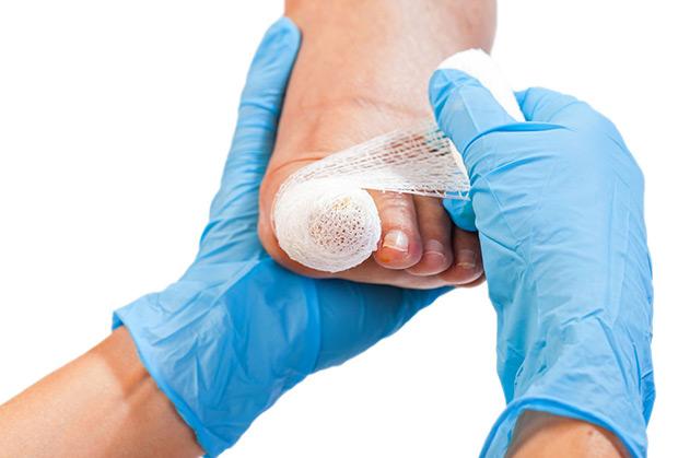 fibrokeratoma wsteczne wrastanie paznokcia