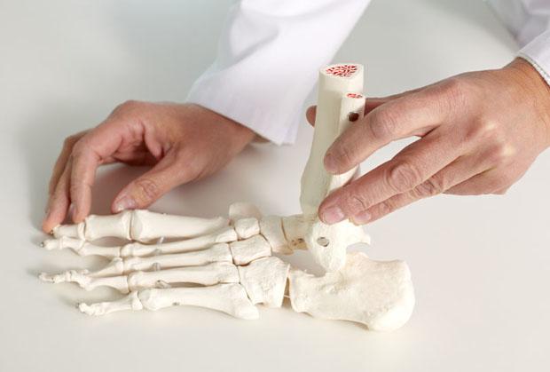metody leczenia plaskostopia