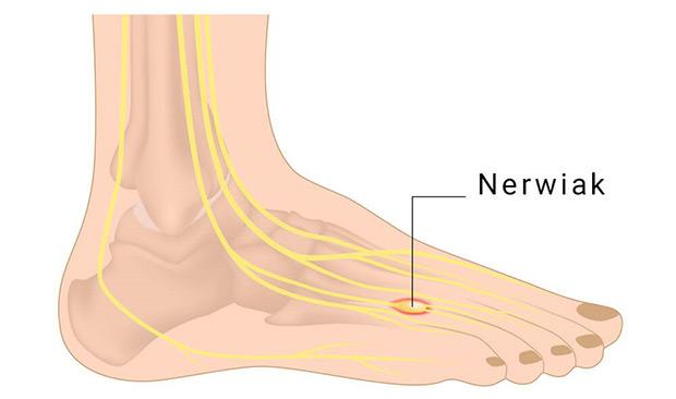 nerwiak Mortona choroba stopy new