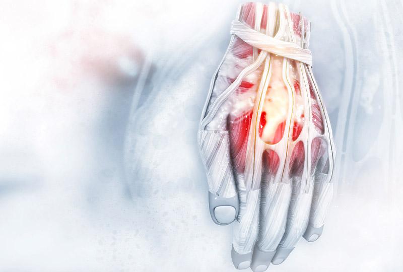 operacja choroby zwyrodnieniowej nadgarstka i reki