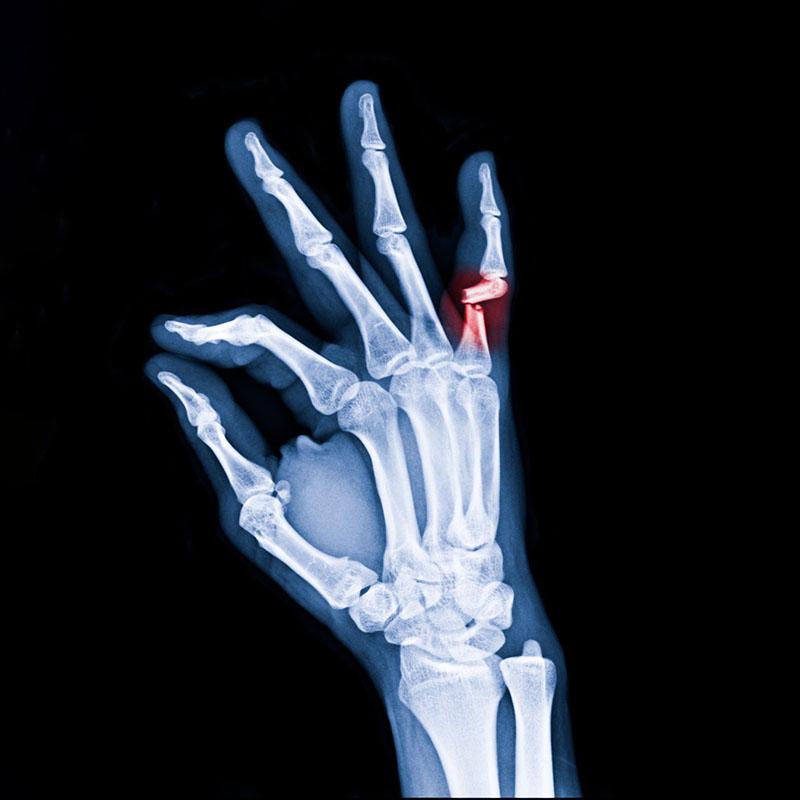 operacja zlamanego palca warszawa medicum