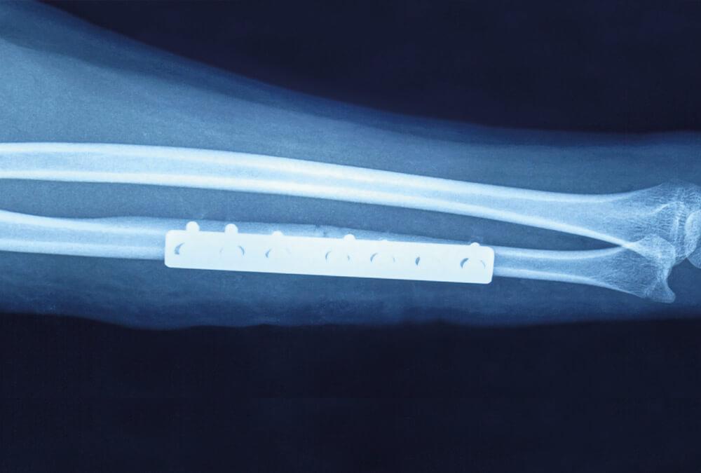 osteosynteza kosci promieniowej przy wykorzystaniu plytki