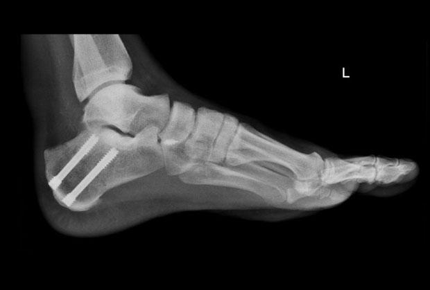 osteotomia kosci pietowej