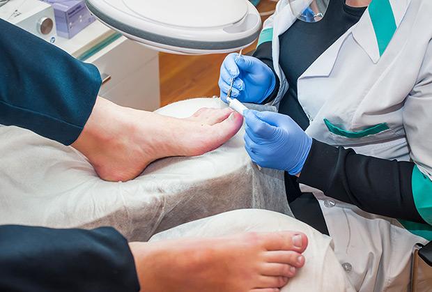 retronychia podochirurgia