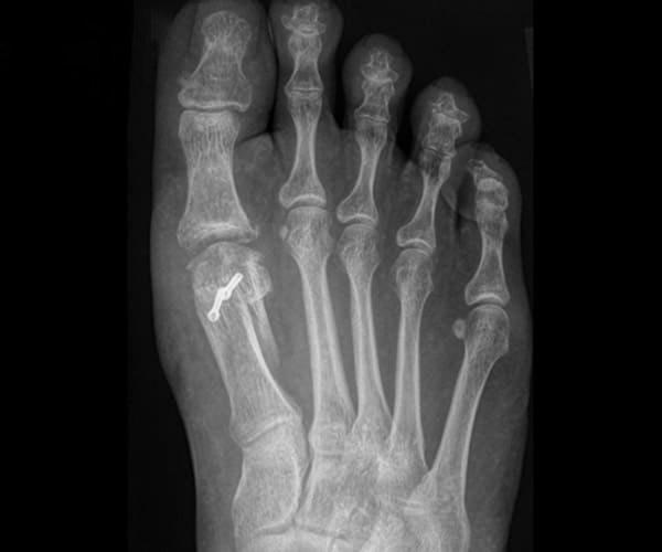 zabiegi operacyjne operacja paluch sztywny osteotomia weil rtg ap